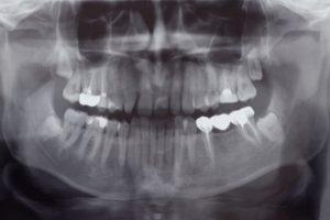 Asheville Dentist