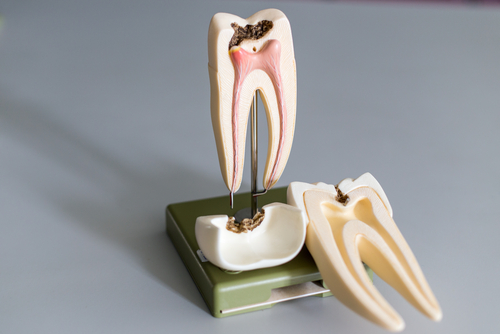 Root Canal Model